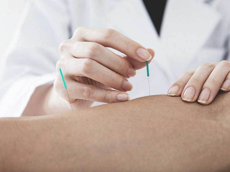 Significance of acupuncture