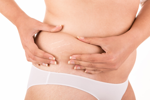 Home cures for stretch marks