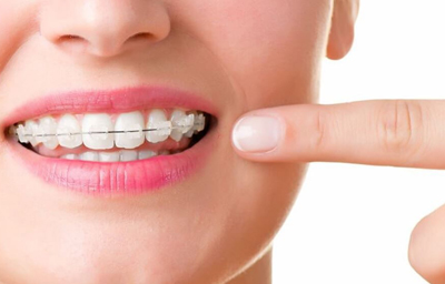Things to know about braces